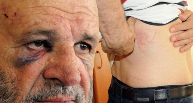 Ücretini İsteyen Avukatı Vahşice Dövdüler